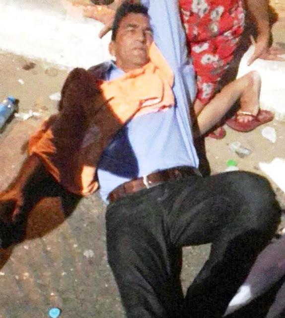 Ex-deputado sofre traumatismo após ser atropelado na zona Leste de Teresina