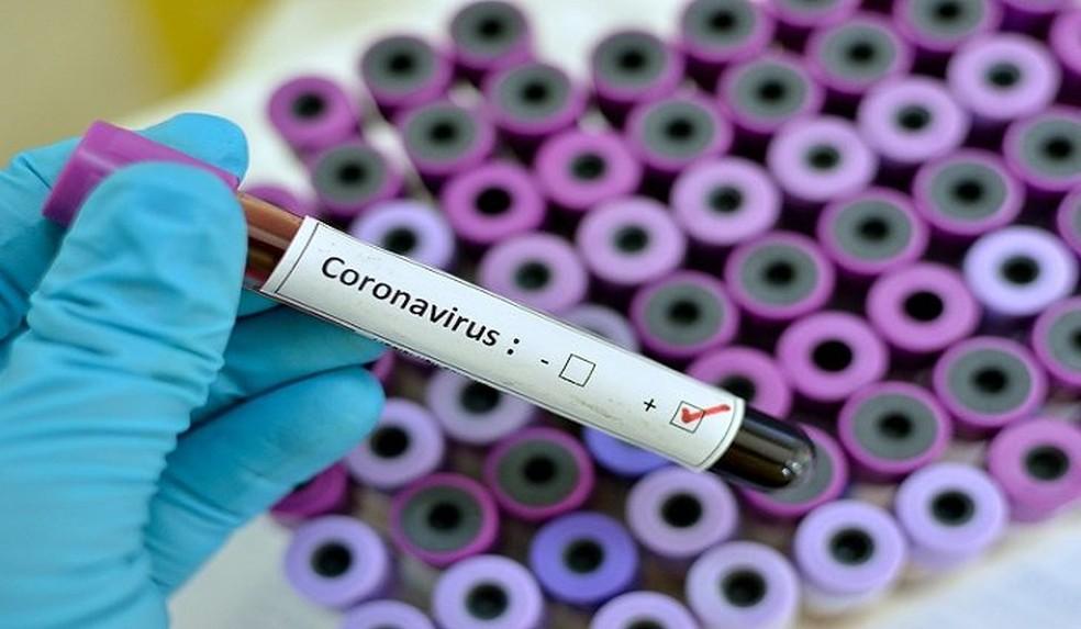 Piauí registra mais 598 casos de Covid-19 em 24 horas