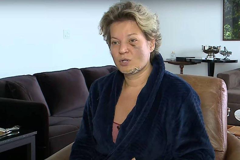 Joice diz que enviou à polícia nomes de suspeitos de agressão