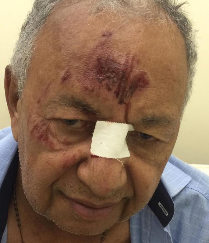 Dr. Pessoa fica ferido ao ser atropelado por motociclista