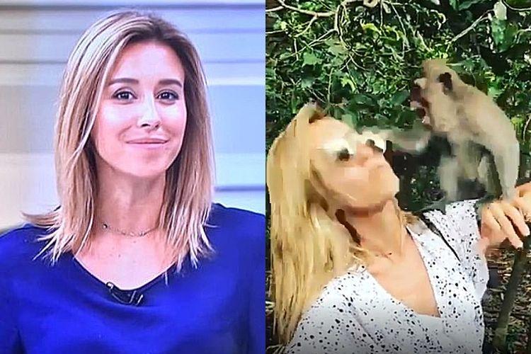 Ex-apresentadora da Globo é atacada por macaco durante folga