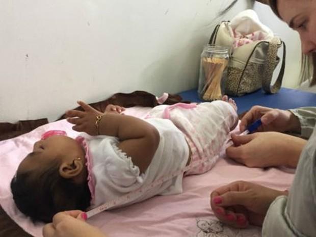 Crianças com microcefalia terão pensão vitalícia